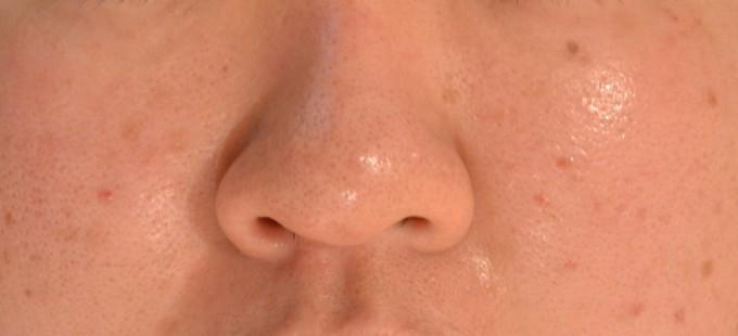 水素PB鼻