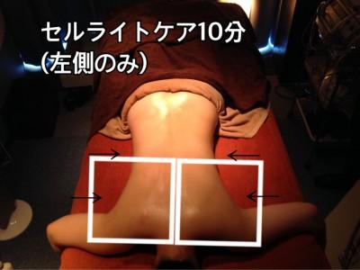 セルライトケア、筋膜リリース