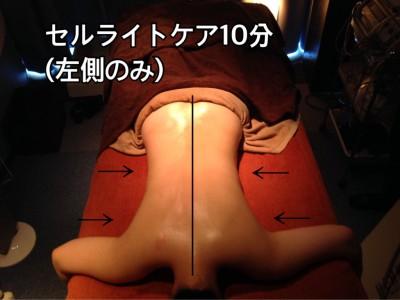 セルライトケア、筋膜リリース2