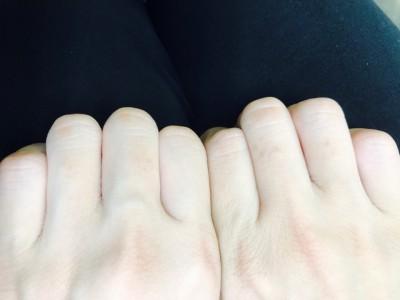 手の指CR.PJ