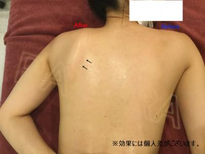 リンパテック 肩甲骨