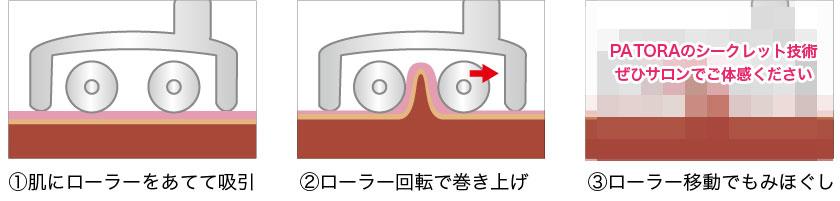 世界初トルネード技術!吸引・回転を繰り返してセルライト脂肪を潰して除去!