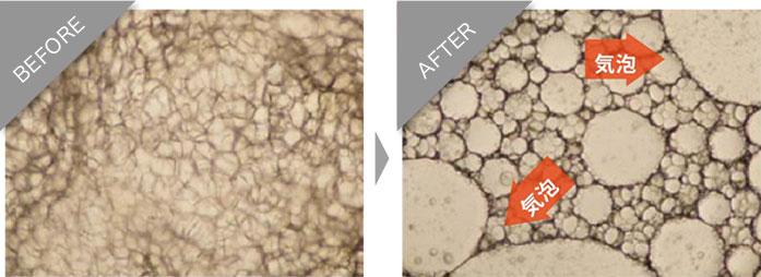 右の写真が、気泡が大きくなり、脂肪細胞を破壊している状態です。