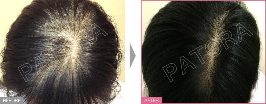 育毛ヘッドスパ3ヶ月通い放題