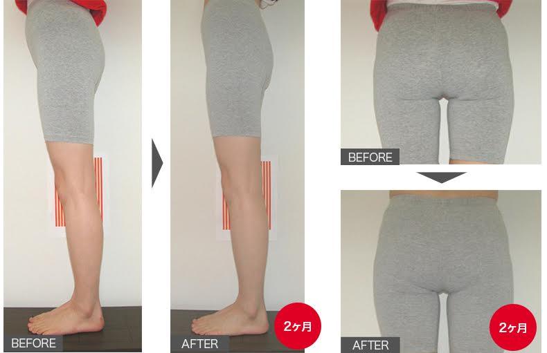 下半身肥満改善